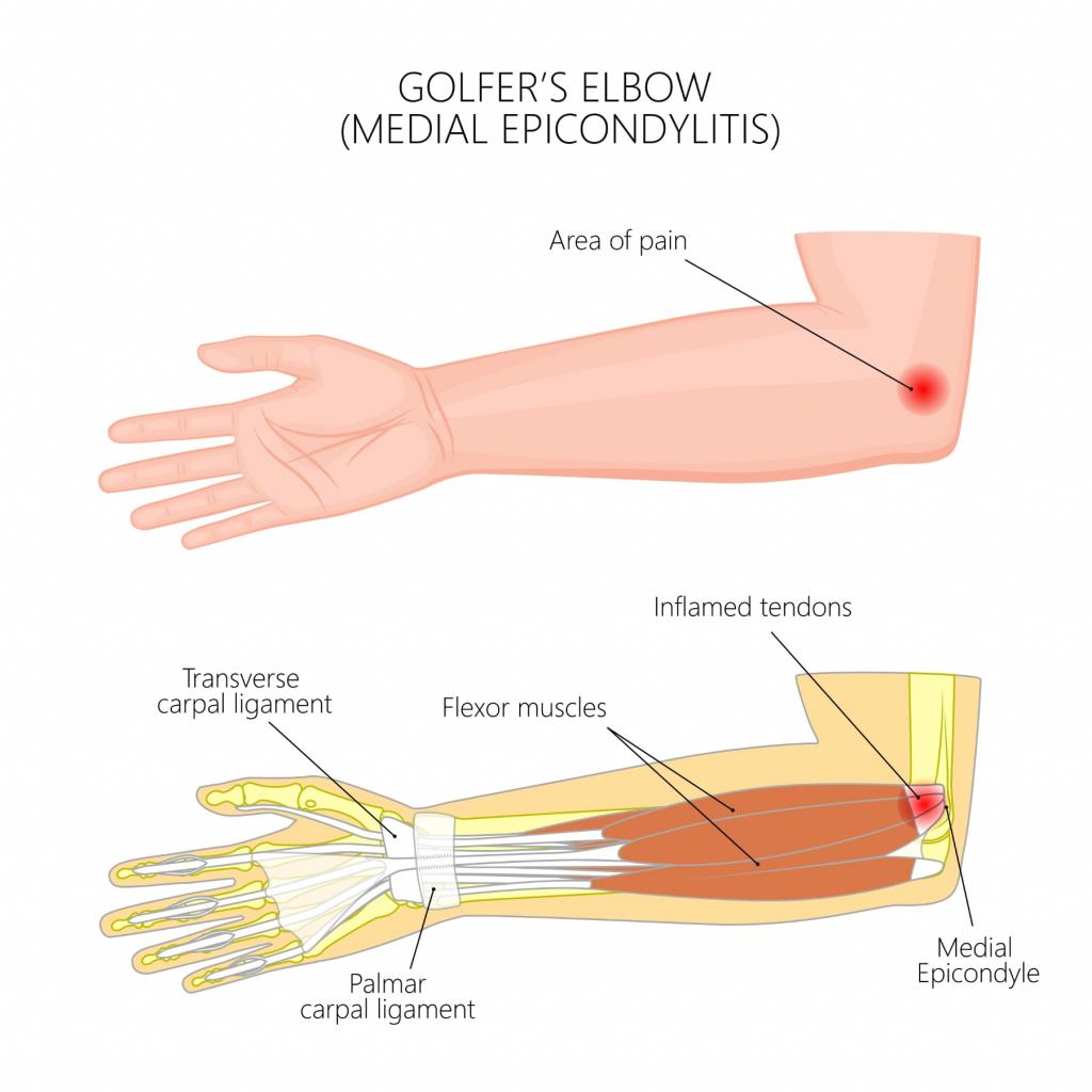 golfers elbow injury progressive PT costa mesa newport beach irvine garden grove orange anaheim orange county near me